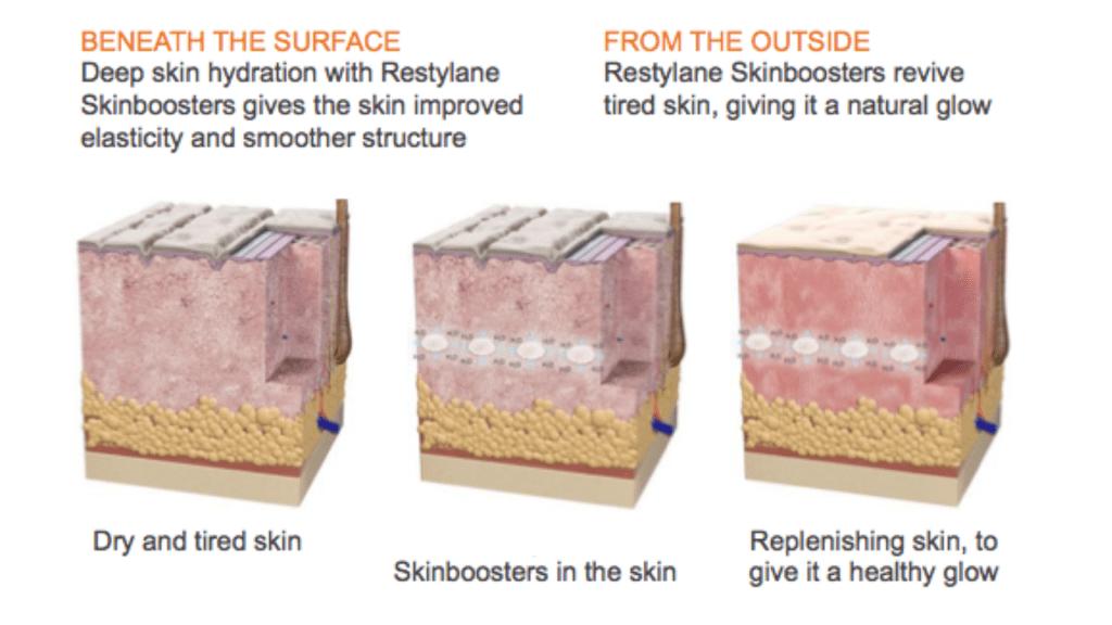 G:\Skinboosters\Slide11.jpg
